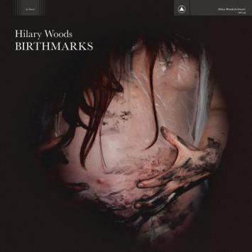 Hilary Woods - Birthmarks